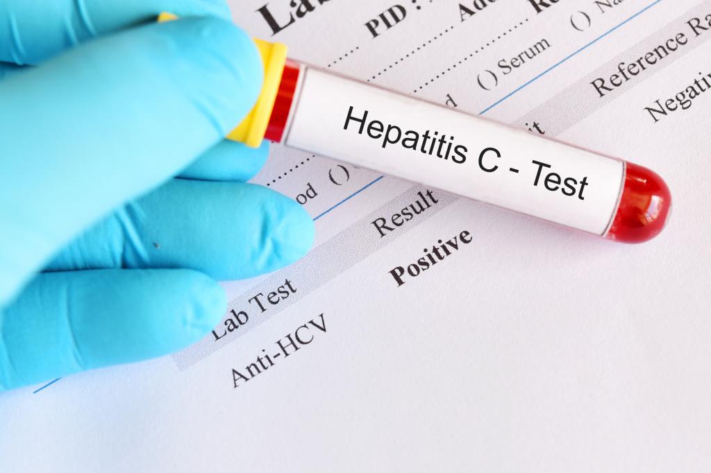 Выявление антител к гепатиту С: anti-HCV total, IgG, IgM, core, NS