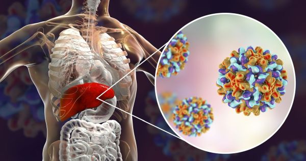 Гепатит С взят под контроль в Израиле