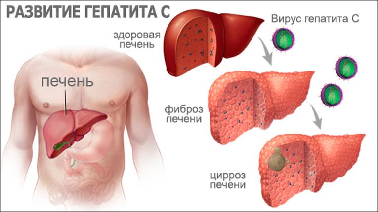 Через какое время проявляется гепатит С после заражения?