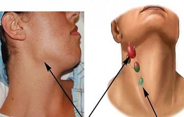 Почему увеличиваются лимфоузлы при гепатите С