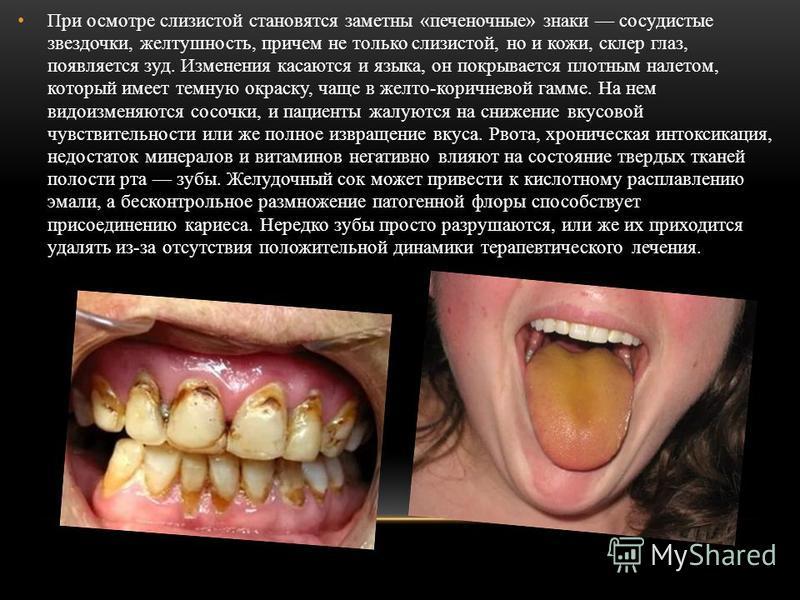 Состояние полости рта и языка при гепатите