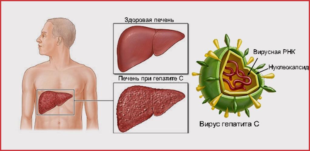 Симптомы и лечение гепатита печени
