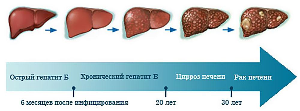 Как лечить хронический гепатит В