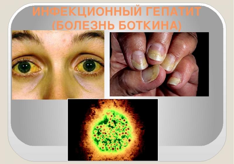 Болезнь гепатит