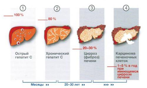 Как лечить асцит цирроз печени