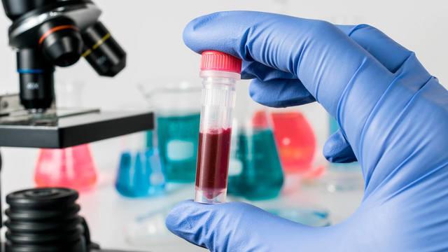 Исследование крови на вирусный гепатит