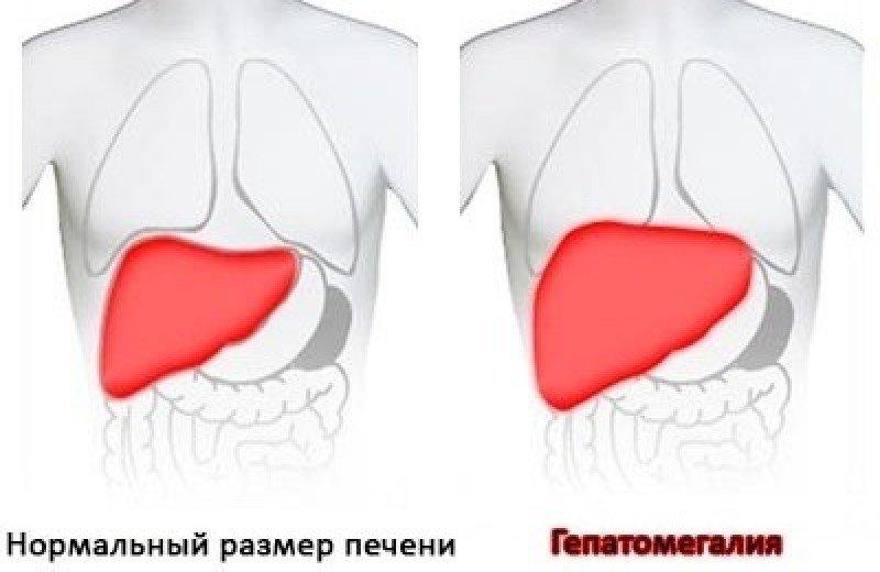 Проявления умеренной гепатомегалии