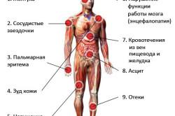 Сиимптомы гепатита Б