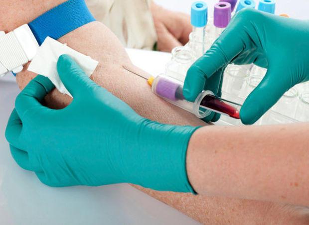 Сдача анализов на гепатит