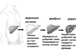 Гепатит с цирроз печени