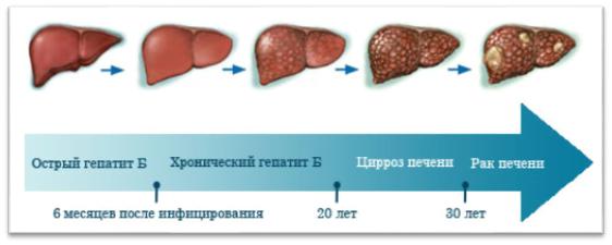 Развитие цирроза печени при хронической форме гепатита
