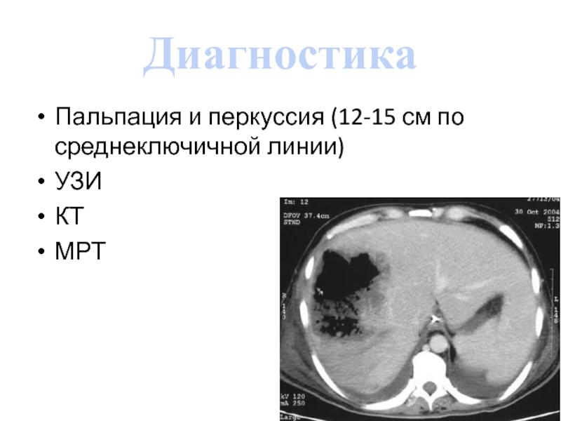 Диагностика гепатомегалии с помощью МРТ