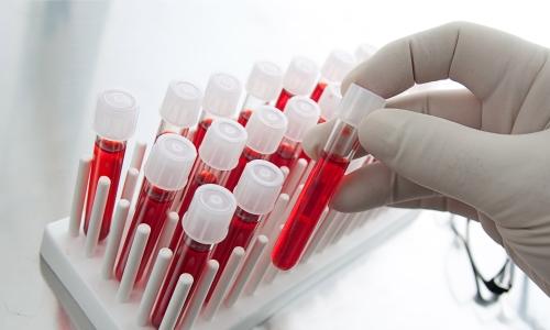 Гепатоз печени лечение можно вылечить народные средства