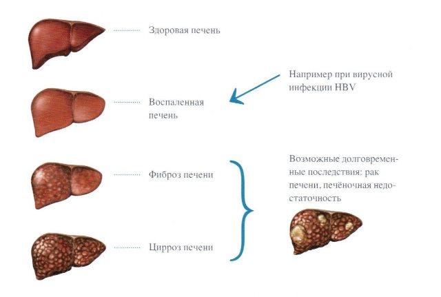 Возможные долговременные последствия хронического гепатита В для печени