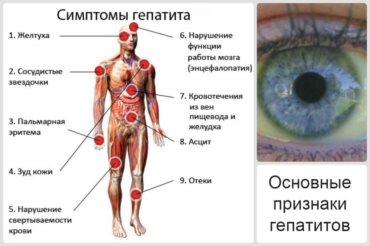 Опасность прививки от гепатита a