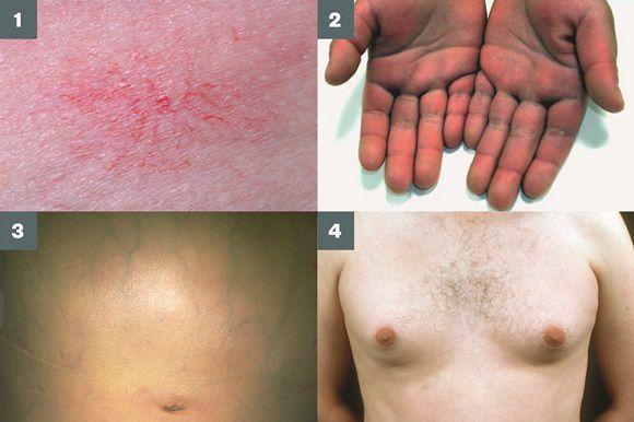 Симптомы при циррозе печени