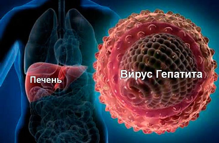 Воспаление печени при гепатите С
