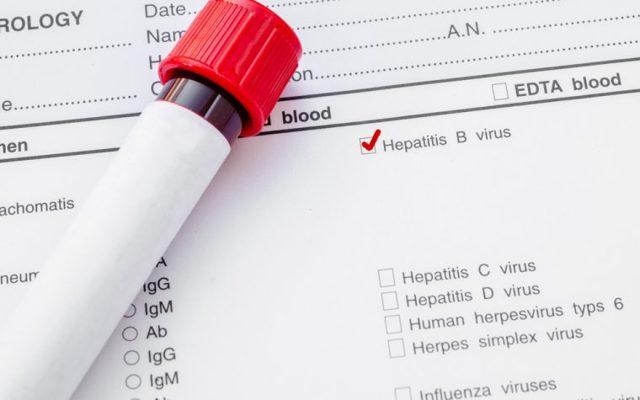 Анализ крови на hbs антиген