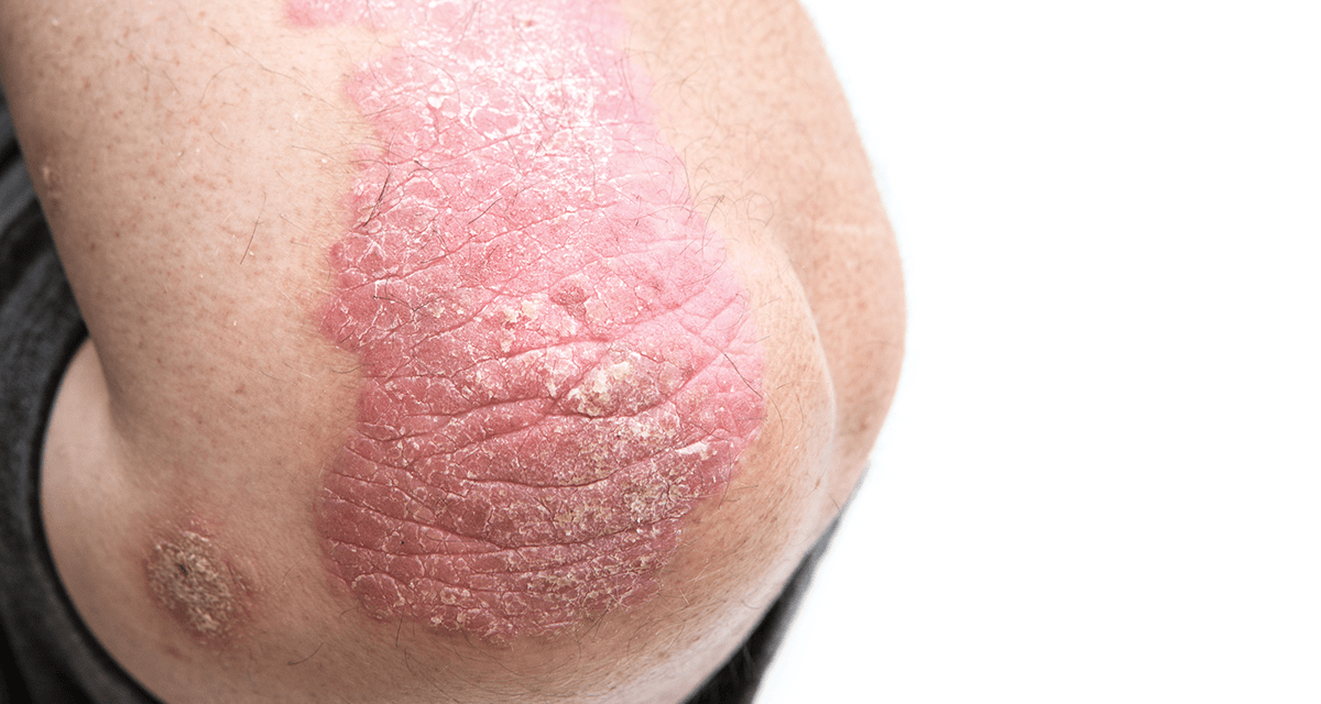 Сыпь при гепатите: причины и способы лечения
