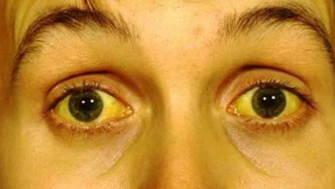 Желтизна кожи и глаз