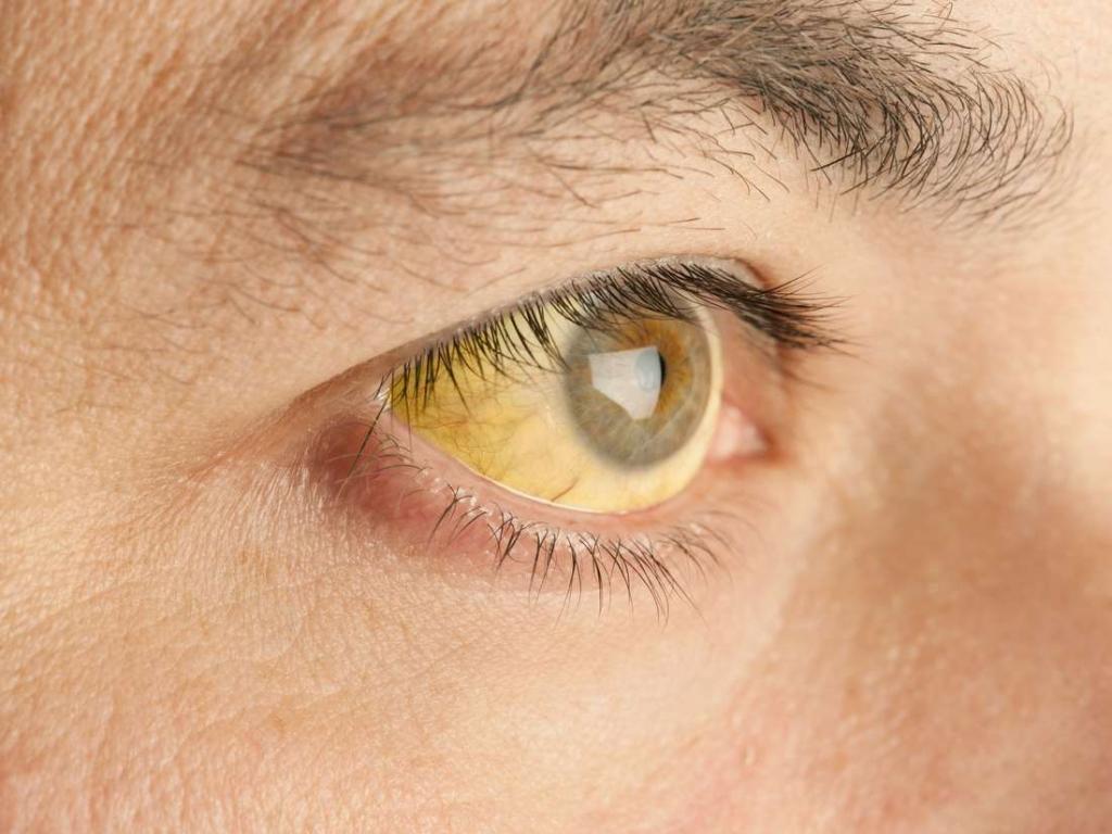 Желтушность глаз и кожных покровов