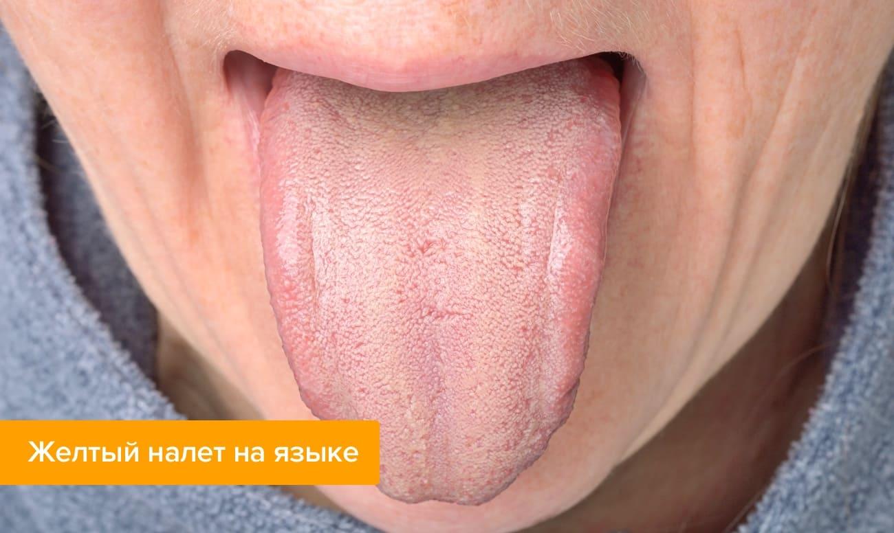 Желтый налет на языке