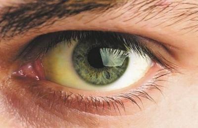 Изменение цвета кожи и белков глаз