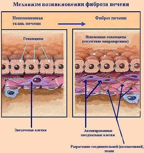Механизм возникновения фиброза печени