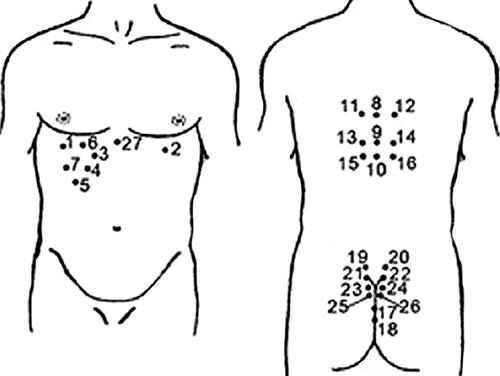 Схема постановки пиявок при гепатите