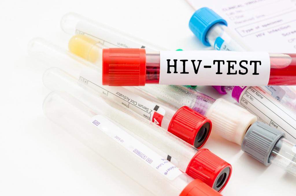 ВИЧ-тестирование