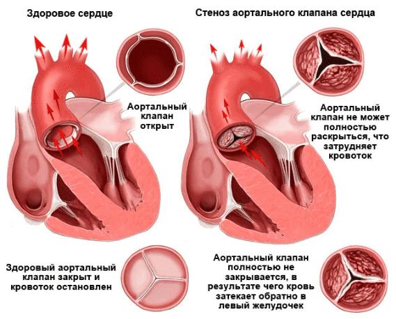 Патологии сердца
