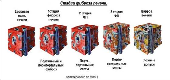 Стадии фиброза печени