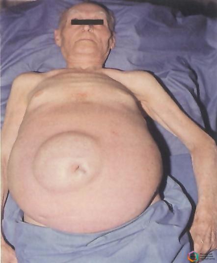 Фото больных асцитом