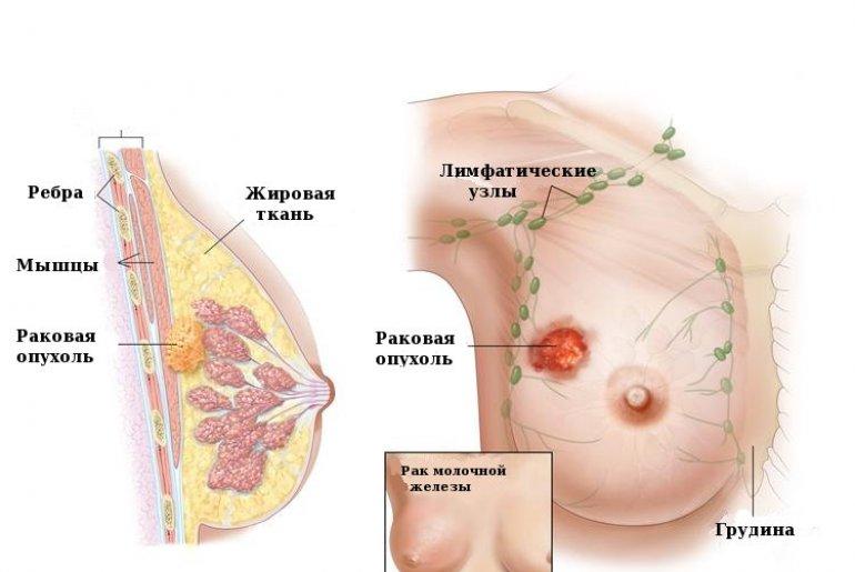 Карцинома молочной железы