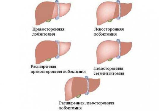 Левосторонняя лобэктомия печени