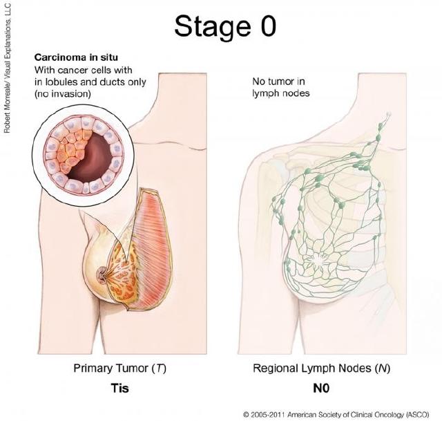 Начальное развитие онкопроцесса