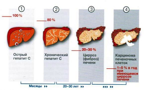 Развитие болезни гепатит С