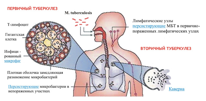 Механизмы возникновения туберкулеза