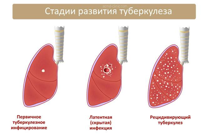 Развитие туберкулеза