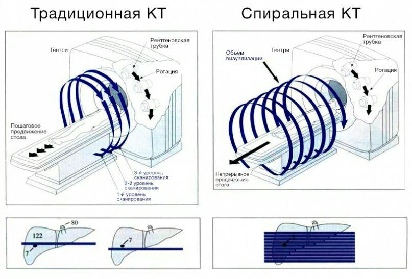 Традиционная и спиральная КТ