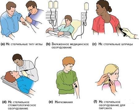 Способы передачи гепатита B