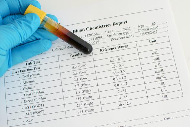 Анализ на концентрацию билирубина