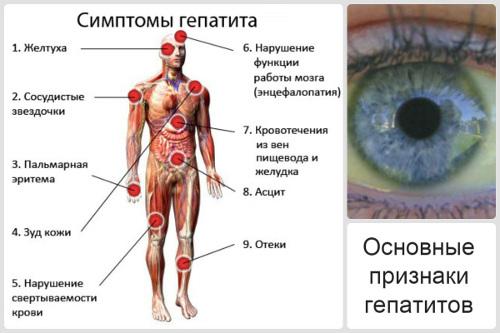 Признаки гепатита C