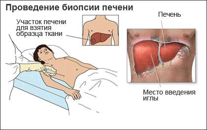 Схема биопсии печени