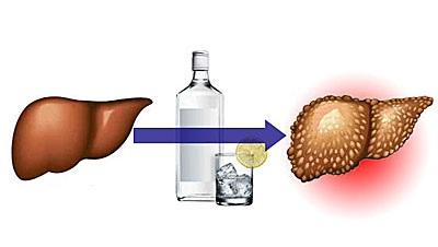 Действие алкоголя на печень