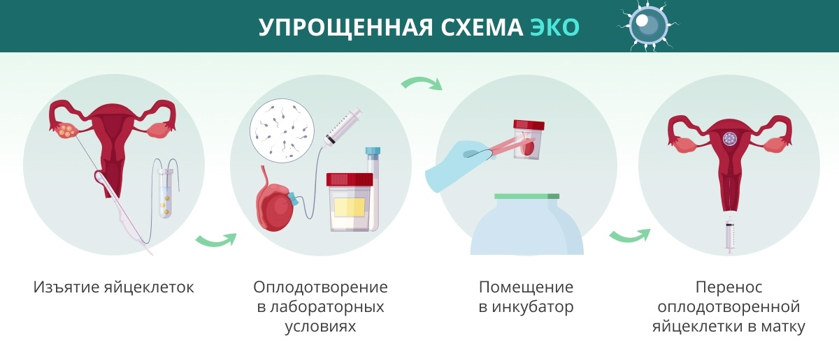 Процедура ЭКО