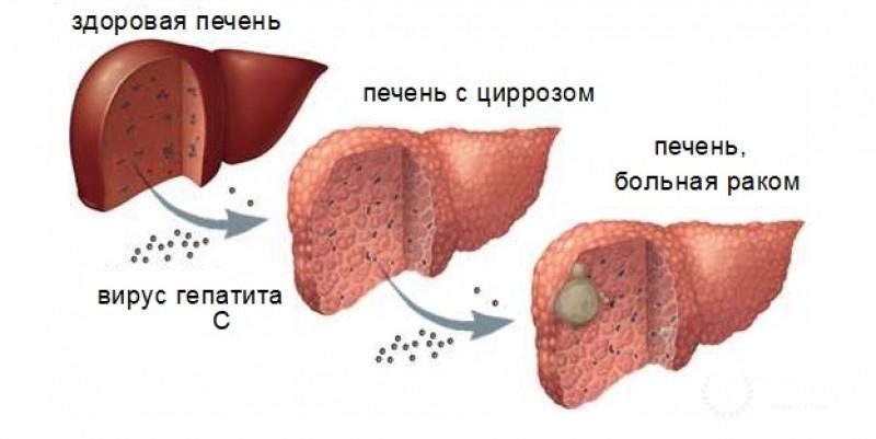 Цирроз и карцинома